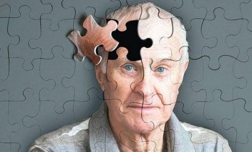 Warnzeichen für Alzheimer - Woran ist die Demenz zu erkennen?