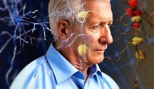 Warnzeichen für Alzheimer