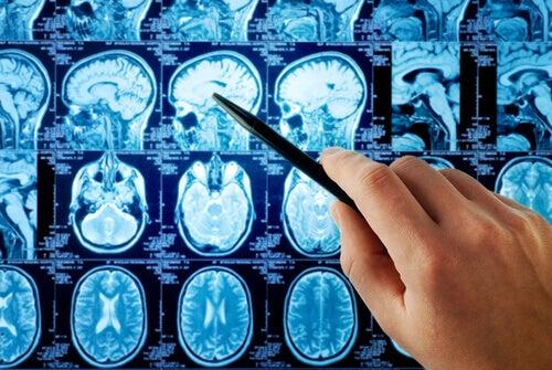 Bildgebende Diagnostik Gehirn