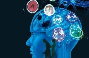 Multiple Sklerose: Ursachen, Symptome und Behandlung - Abstrakte Darstellung des Gehirns