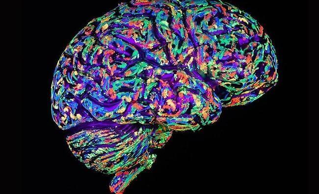 Querschnitt durch ein menschliches Gehirn in Leuchtfarben.
