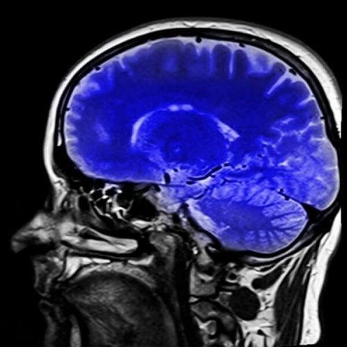 Scan eines Gehirns