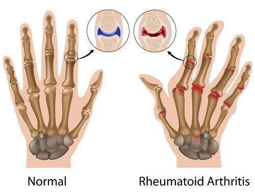 Veranschaulichung gesunder Gelenke und rheumatoider Arthritis