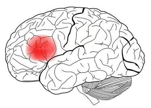 Ein Gehirn mit rot markiertem Broca-Areal.