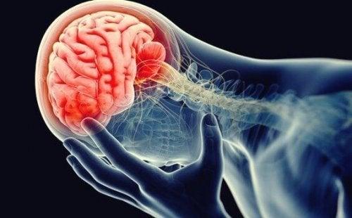Darstellung eines entzündeten Gehirns