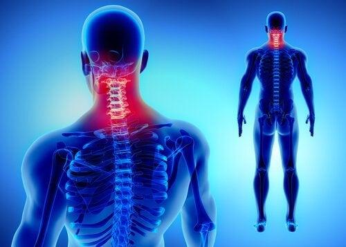 Darstellung der Halswirbelsäule als Problemzone