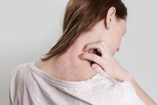 Frau kratzt sich im Nacken