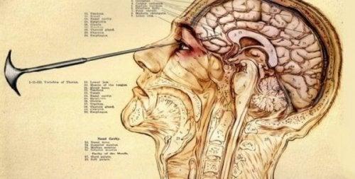 Bildliche Darstellung einer Lobotomie
