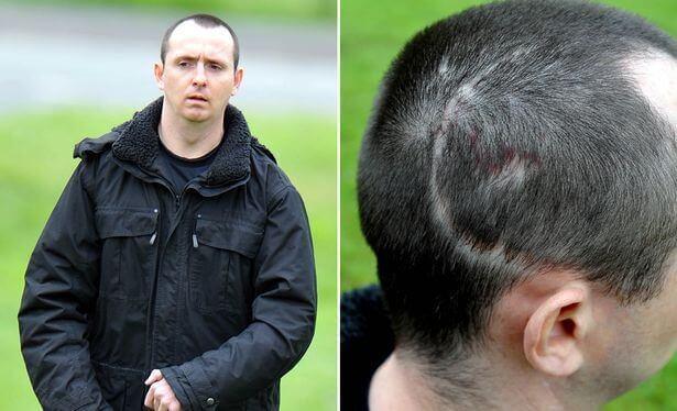 Paul Pugh und seine Narben am Kopf, die von einer Verletzung herrühren, die pathologisches Lachen herbeiführten.