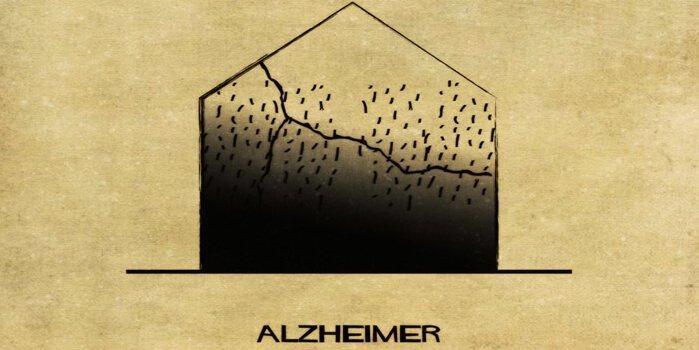 Alzheimer vom italienischen Architekten Balbina dargestellt.