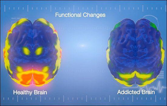 Gesundes und süchtiges Gehirn