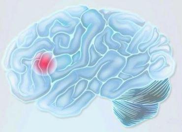 Zeichnung eines menschlichen Gehirns und Symbol für Schlaganfall