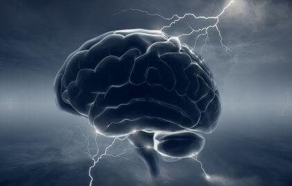Gehirn unter Blitzen