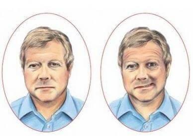 Zwei Bilder eines Mannes. Das eine zeigt ihm beim Versuch des Lächelns, aber er kann nur einen Mundwinkel nach oben ziehen.