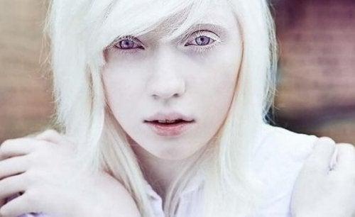 Leben mit dem Albinismus: Jenseits der physischen Erscheinung