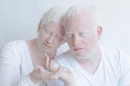 Albino-Paar