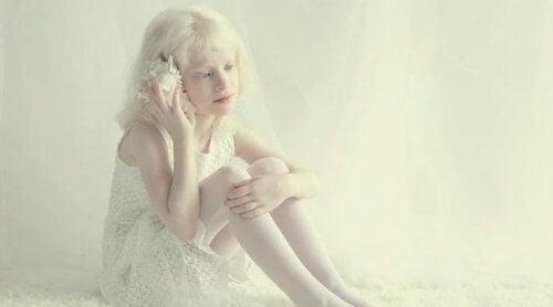 Mädchen mit Albinismus