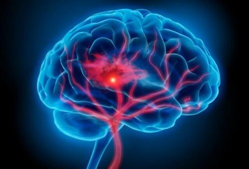 Das Serotonin-Syndrom: Symptome und Behandlung