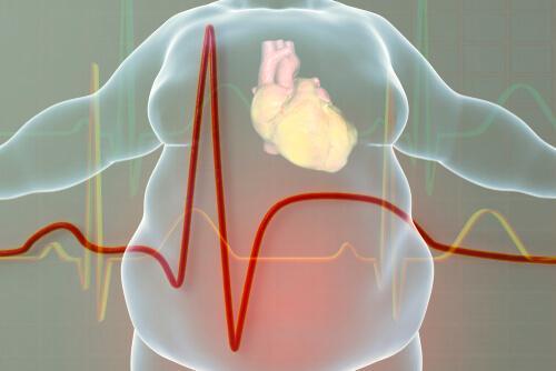 Profil eines fettleibigen Menschen, der zu Herzerkrankungen neigt