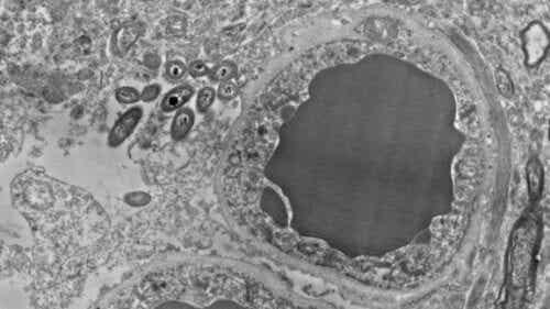 Gehirn-Mikrobiom: Darmbakterien in unserem Gehirn