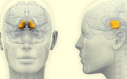 Eine Illustration, die die Basalganglien im Gehirn hervorhebt, einem der Hauptteile, auf die sich die progressive supranukleäre Lähmung auswirkt.