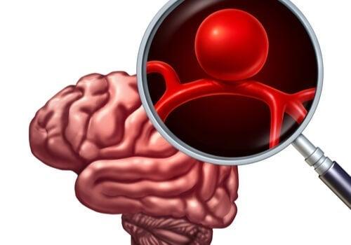 Aneurysma - Gehirn