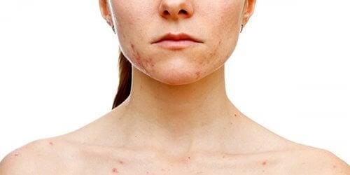 Acanthosis nigricans ist eine Hauterkrankung, bei der Bereiche wie die Leisten, die Achselhöhlen oder Teile des Halses dunkler und rauer werden