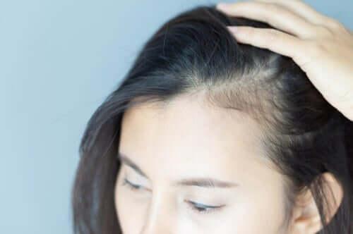 Die psychologischen Auswirkungen von Alopezie bei Frauen