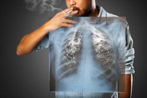 Erhöht der Tabakkonsum die Gefahr für Komplikationen bei einer Covid-19-Infektion?