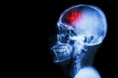nach einem Schlaganfall - Gehirnscan