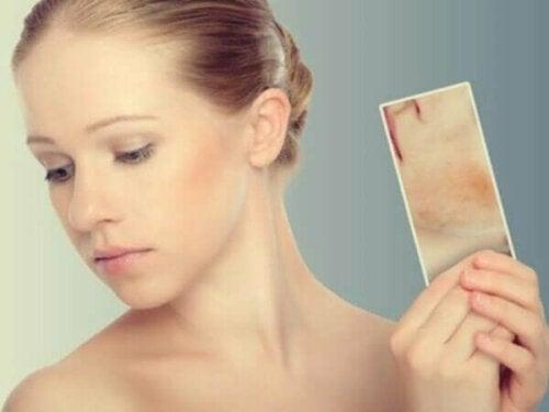 Stressbedingte Hautausschläge und Flecken: Wenn deine Haut auf deine Emotionen reagiert