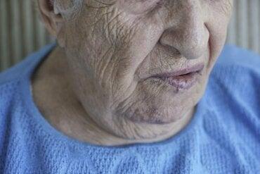 Gesichtslähmung: Ursachen und Behandlung
