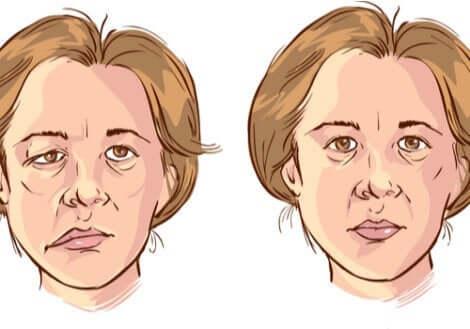Gesichtslähmung - Zeichnung einer Frau