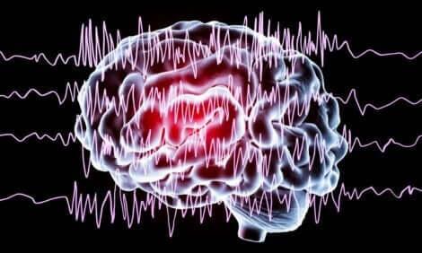 Schlafstörungen erzeugen Aktivität im Gehirn