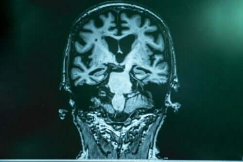 Die Gehirnwellenstimulation brachte positive Ergebnisse bei Tierversuchen hervor