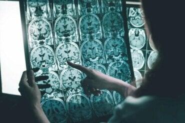 Gehirnwellenstimulation für Menschen mit Alzheimer