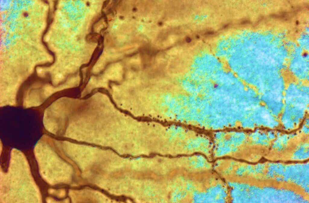 Intelligente Menschen haben größere Neuronen